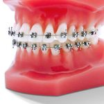 Ortho-Brackets